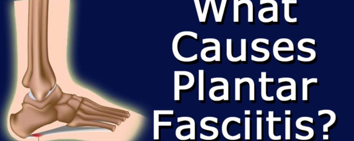 Common Causes of Plantar Fasciitis