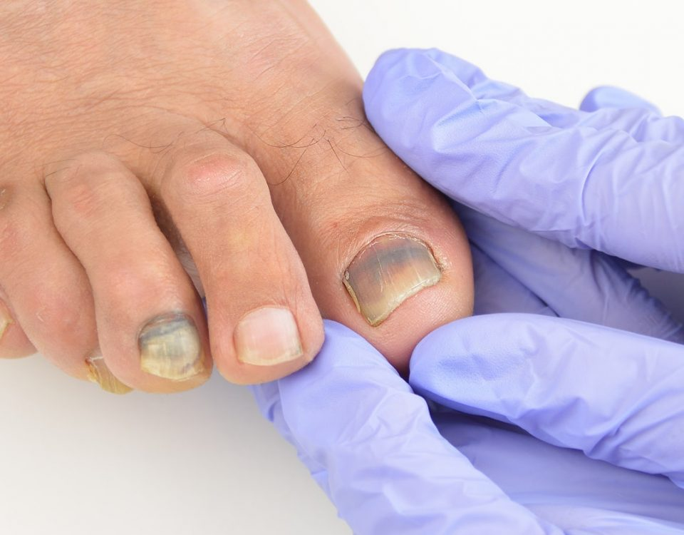 Pain of Ingrown Toenails