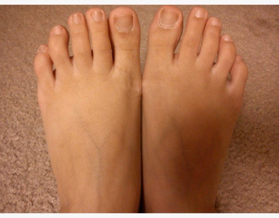 results of Vaseline on feet