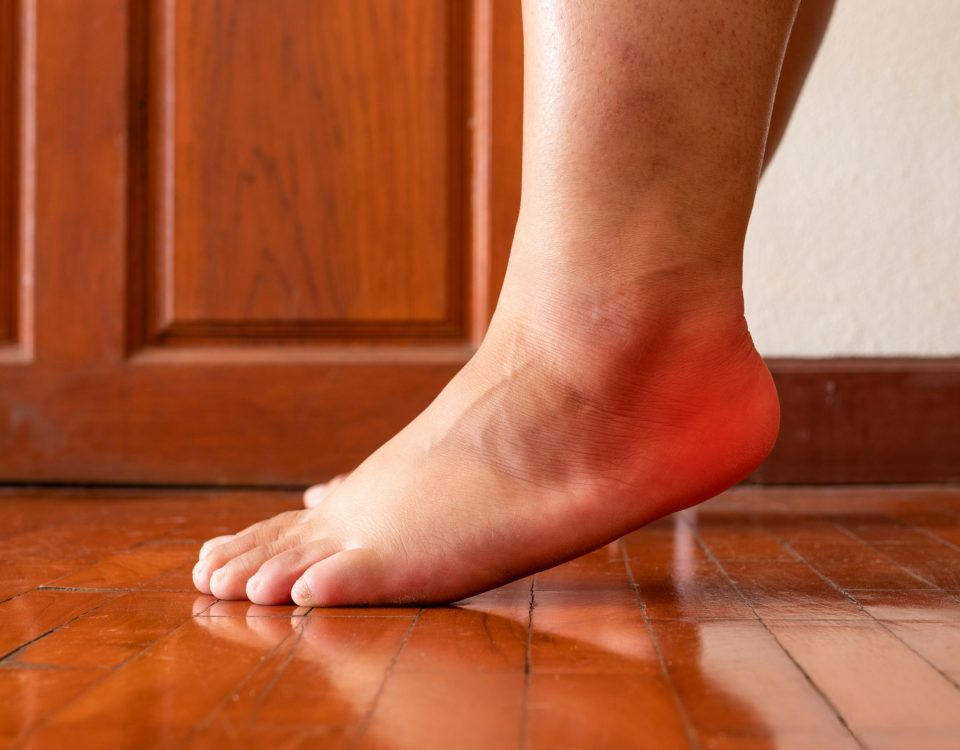 How to Fix Plantar Fasciitis